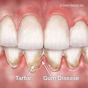 Do you have Tooth decay and gum disease? Here are good tips for you