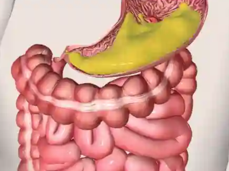 Check Out Symptoms And Tips For Treating Stomach Ulcer