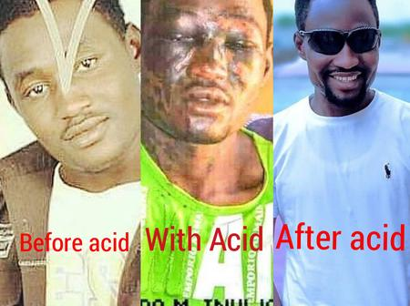 13 Years After Acid was Poured on Nura M Inuwa's face, See his Fresh Photos and How He has changed