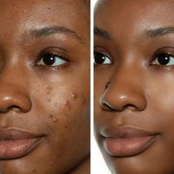 3 Simple Habits That Can Make Your Face Free From Pimples
