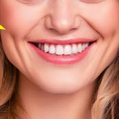 Get Deeper Dimples Naturally Without Struggling By Doing The Following