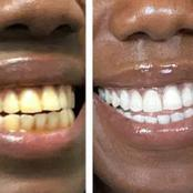 Say Goodbye To Yellow Teeth Overnight, Don't Sleep Before You Do These