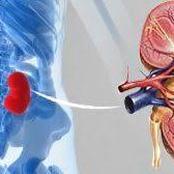 Medicine for Kidney Stones