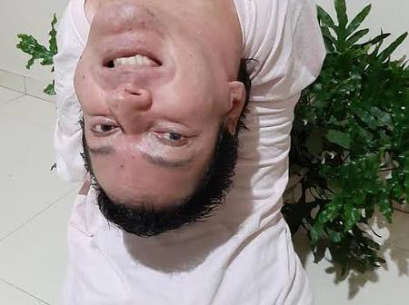 Man With 'Upside Down Head' wasn't expected to survive 24 hours.