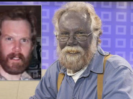 9 Images Of People Who Are Living With A Disorder Called Argyria. A Condition Which Turns Them Blue