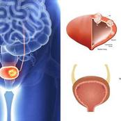 7 Bladder Symptoms You Can't Ignore