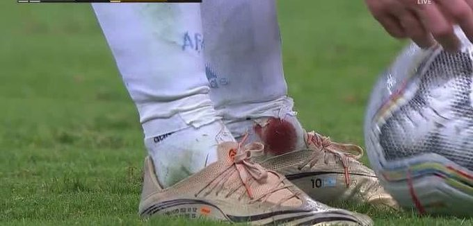 Messi played the second half with his ankle bleeding until the end