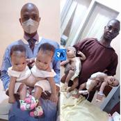 Nigéria : des jumelles siamoises séparées avec succès