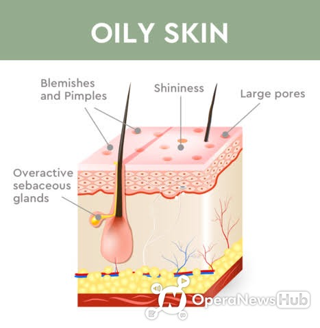 What Makes Your Face Oily And Natural Home Remedies For It Opera