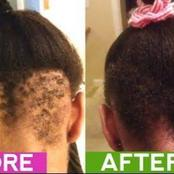 Grow Your Hairline Back Using Green Tea