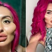 She spent over 750,000 to look like this, see pictures of the woman with the world's biggest cheek