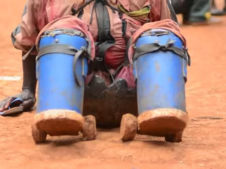 His Father Cut Off Both His Legs With An Intention To Kill Him: See How He Survives Now