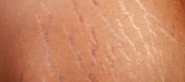 Secret Experts Use To Clear Stretch Marks Permanently