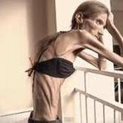 A Woman Battled With Anorexia For 10 Years & Finally Survived And Looks Amazing |