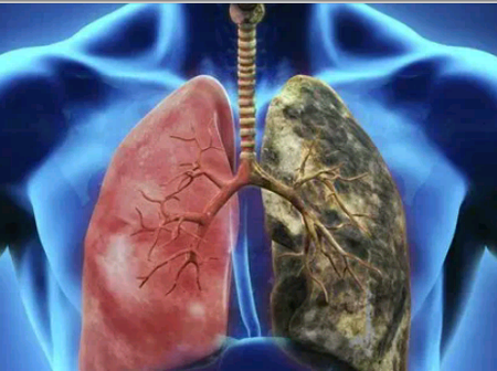 Use Any Of This 5 Methods To Purify Your Lungs Without Taking Pills