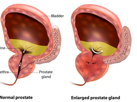 Here Is How Prostrate Cancer Grows