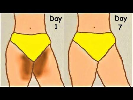 6 Ways To Get Rid Of Darker Inner Thighs