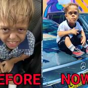 Remember The 9-Year-Old Dwarf Who Wanted To Kill Himself?- See How His Life Has Changed Under 1 Year