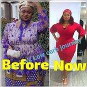 No Surgery Involved: Reactions As Woman Shares Her Transformation Pictures
