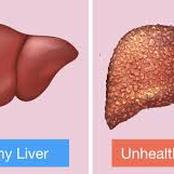 Five (5) Foods To Reduce Eating If You Love your Liver