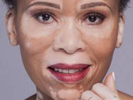 South African celebrities with Vitiligo- Leleti Khumalo, Brighton Ngoma and Kgothi Iman Dithebe.