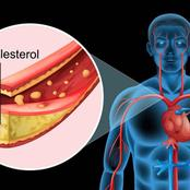 5 Warning Signs of High Cholesterol in Your Body