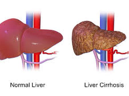 If You Don't Want To Suffer Liver Failure, Reduce Your Consumption Of These 3 Things