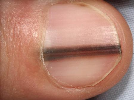If You Notice This On Your Nail, Please See A Doctor As It May Be Cancer