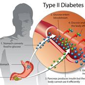 How to avoid the complications of diabetes by curing it without surgery