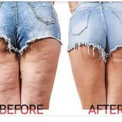 Do You Have Cellulite On Your Thighs? See Effective Home Remedies That Can Help To Eliminate It!