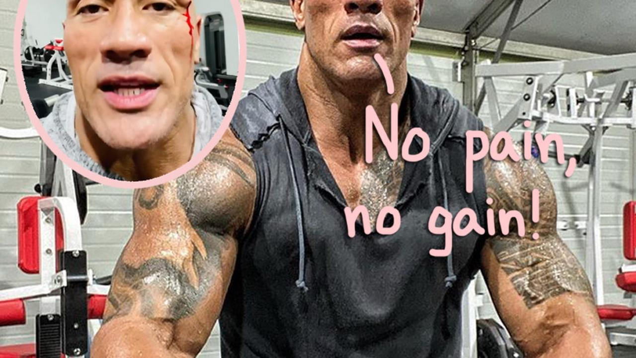The Rock Hit The Gym A Little TOO Hard This Time - See The Bloody Injury Video!