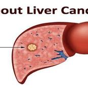 Liver Cancer Kills: Immediately You Notice These 8 Signs, Kindly Visit Your Doctor For A Test